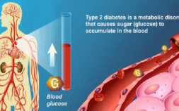 type 2 diabetes mellitus, American diabetes association, type 2 diabetes symptoms