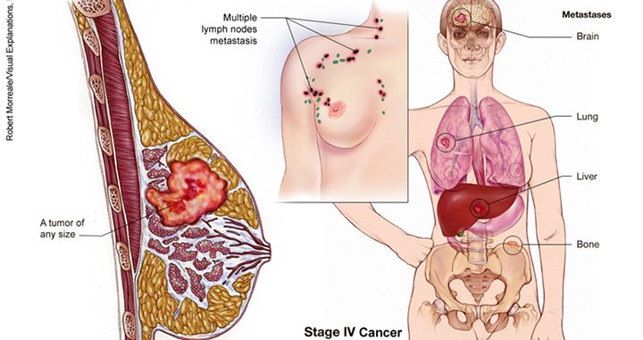 metastatic breast cancer, metastatic breast cancer treatment, metastasized breast cancer