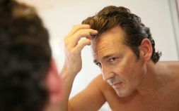 Get the Ultimate Hair Loss Treatment for Your Hair, hair loss, hair loss prevention